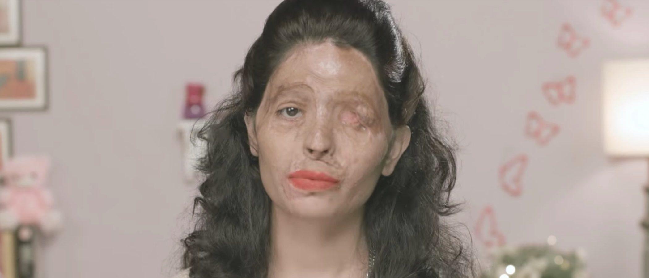 La Semana de la Moda de Nueva York tiene nueva modelo: una víctima de un ataque con ácido