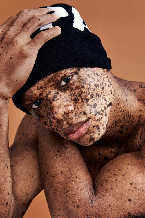 El modelo masculino Ralph Souffrant participa en la campaña publicitaria Ivy Park de otoño/invierno 2017/2018